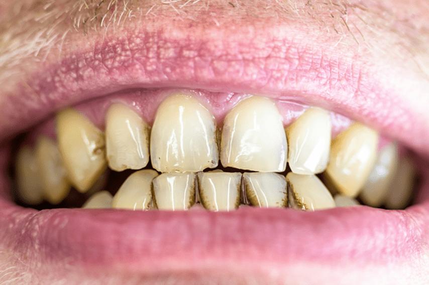 ¿Qué efectos tiene el tabaco en mi boca?